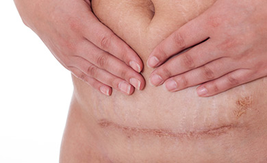 Fisioterapia no pós-operatório de cesárea